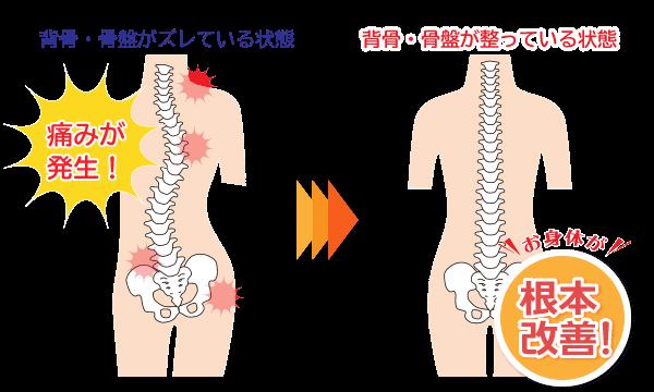 背骨・骨盤が曲がっていると痛みが発生