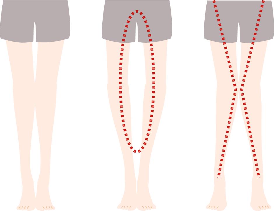 O脚やX脚と正常な状態の比較画像